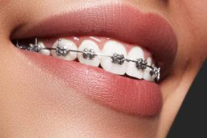 orthodontic treatment - braces